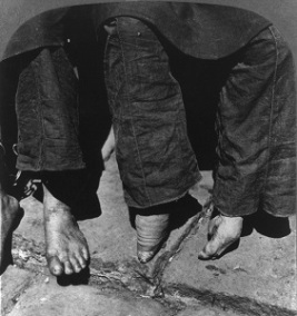 Natural vs. Bound Feet (1902), Photo by G. G. Bain, Library of Congress